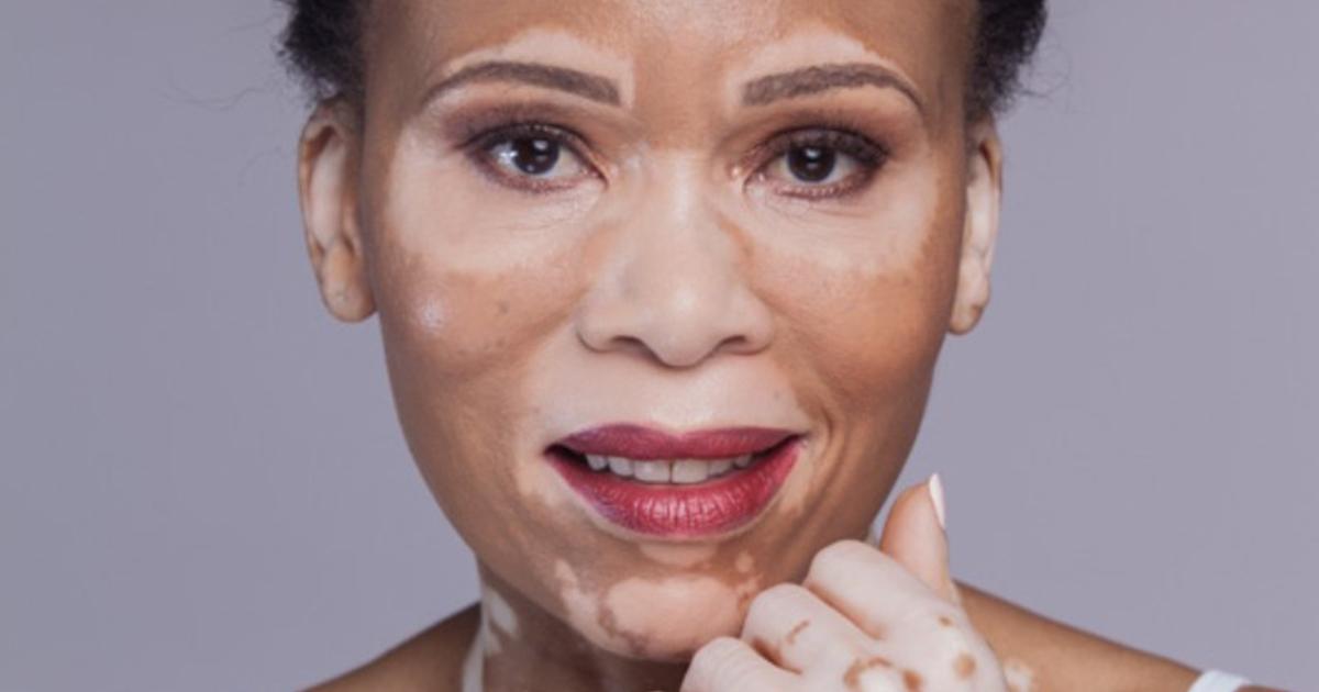 Santé/Tout connaitre sur le Vitiligo